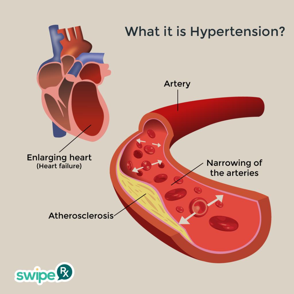 what-is-hypertension-swiperx